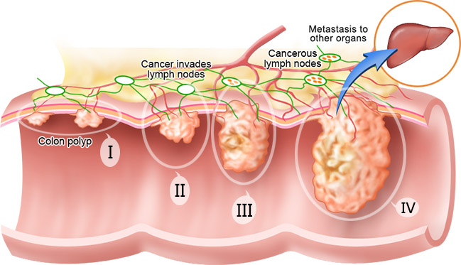 an overview of the causes diagnosis prognosis and treatment of neuroblastoma This summary section refers to specific treatments under study in  breast  cancer diagnosis and treatment  discover the causes, types, and treatments of  skin cancer.