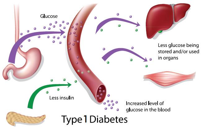 Type 1 Diabetes Pancreas