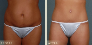 Tummy Tuck Procedure and Recovery