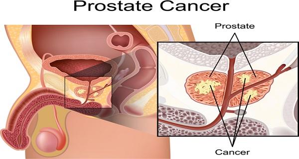 Prostate 2