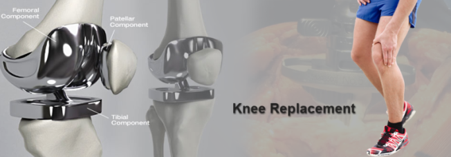 knee procedure
