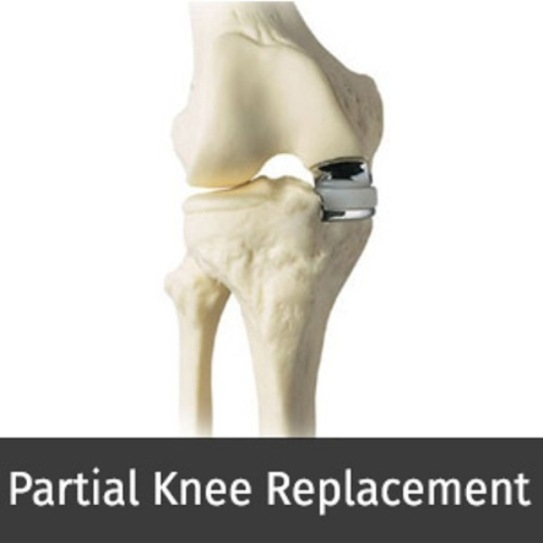 partial-knee-replacement