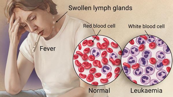 Symptoms of Blood Cancer