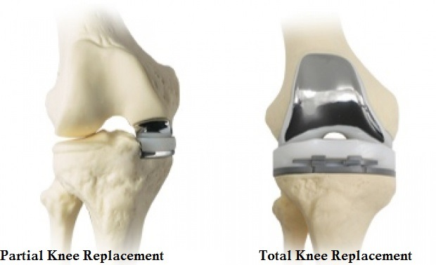 types-of-knee-surgery