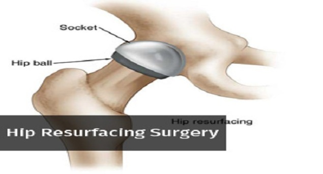 hip-resurfacing-surgery-service