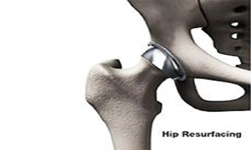 hip-resurfacing-surgery