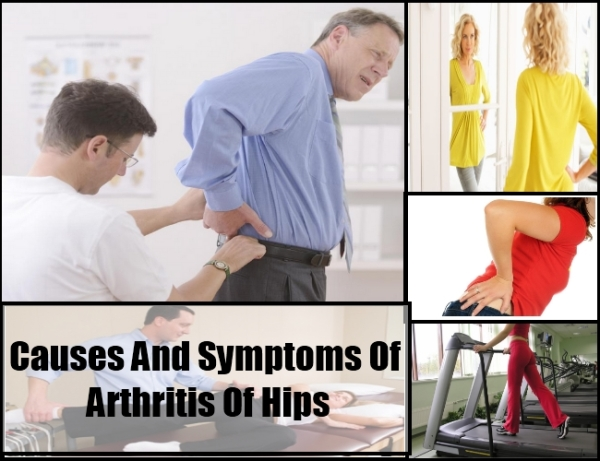 symptoms-of-hip-arthiritis