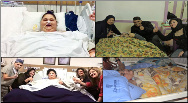 world's heaviest woman has now undergone a surgery called Sleeve Gastrectomy Surgery