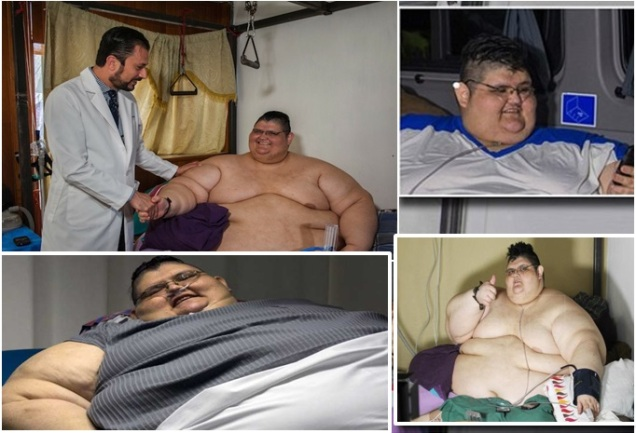 World's Heaviest Man to Undergo Gastric Bypass Surgery