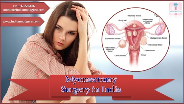 myomectomy surgery in india, myomectomy surgery cost in india, cost of myomectomy surgery in india, best myomectomy surgeon in india, laparoscopic myomectomy cost in india, laparoscopic myomectomy in india, laparoscopic myomectomy surgery India, laparoscopic myomectomy surgery cost India, laparoscopic myomectomy surgery, myomectomy surgery India,