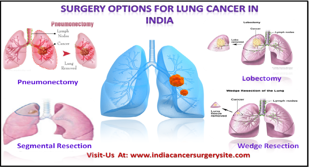 Surgery options for lung cancer in India